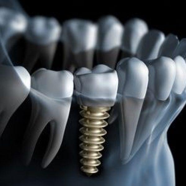 implanty bydgoszcz, białe-błota